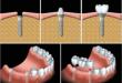 Kỹ thuật cấy ghép răng implant hiện đại cho kết quả ưu việt