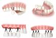 Làm răng implant có đau không thưa bác sĩ?