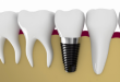 Nên làm implant hay cầu răng – Chia sẻ từ chuyên gia