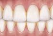 Nguy hại tiềm ẩn từ những mảng bám trên răng