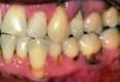Cách chữa sâu chân răng hiệu quả nhất hiện nay