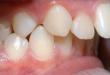 Răng hô có nên bọc sứ? >>> Tin độc quyền