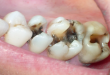 Nhổ răng sâu có đau không >>> Điều bạn cần biết