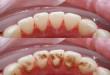 Lấy cao răng có ảnh hưởng gì không? >>> Nghiên cứu nha khoa