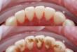 """Hot """"Quy trình lấy cao răng như thế nào"""" mới là chuẩn quốc tế?"""