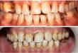 Loại bỏ những tác nhân gây ố vàng răng