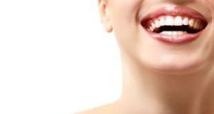 4 cách làm răng hết ố vàng với lô hội tại nhà