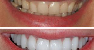 Bí quyết làm trắng răng thần tốc có hướng dẫn chi tiết