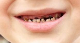 Kiến thức về sâu răng ở trẻ em và cách phòng ngừa