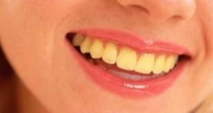 3 nguyên nhân làm răng ố vàng nhiều người mắc phải