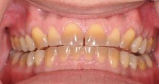 Răng vàng phải làm sao? << Cách làm hết vàng răng nhanh chóng