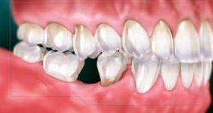 Bạn có biết nhổ răng nên ăn gì để nhanh khỏi?