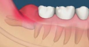 Răng khôn mọc ngầm có nên nhổ không? – Những lưu ý quan trọng.