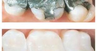 """""""Shock"""" cách chữa đau sâu răng hiệu quả tức thì"""