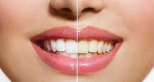 Sự thật đến lúc bạn cần biết lấy cao răng có làm trắng răng không?