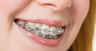 """Bạn từng thắc mắc """"Hô hàm có niềng răng được không?"""" >>> Xem ngay"""