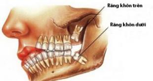 Giải đáp – Răng khôn là răng số mấy? Những biểu hiện phải biết.