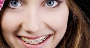 """""""HOT"""" Chia sẻ sự thật cho bạn biết có nên niềng răng không?"""