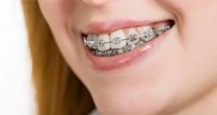 Niềng răng mất bao lâu thì đều về đẹp tự nhiên?