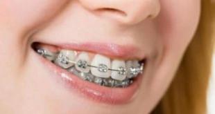 """Giải đáp câu hỏi không thể bỏ qua """" Niềng răng mất bao lâu?"""""""