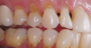 Khắc phục nhức răng mòn men