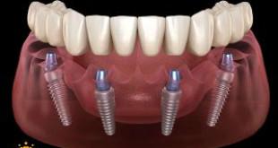 Cấy ghép implant khi mất hết răng có được không? Bác sĩ tư vấn