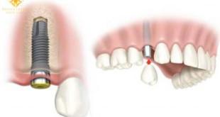 Sự thật cấy ghép implant sau khi nhổ răng có được không?