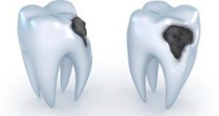 Qúa trình diễn ra của bệnh viêm tủy răng