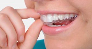 Tìm hiểu về máng điều trị nghiến răng