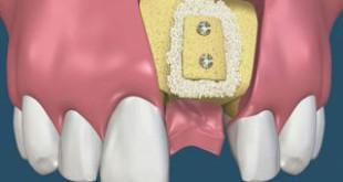 Cấy ghép xương răng – Tại sao cần thực hiện kỹ thuật này