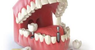 Chỉ định và chống chỉ định của cấy ghép Implant