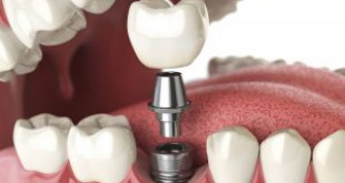 Video trồng răng implant hoàn chỉnh tại Nha khoa Dencos Luxury