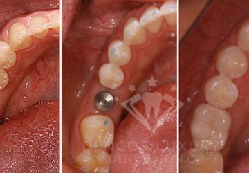 Làm răng sứ implant giá bao nhiêu tiền?