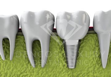 Chuyên gia giải đáp thắc mắc cho bạn: Trồng răng implant là gì?