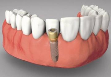 Tìm hiểu giá trồng răng implant hiện nay là bao nhiêu