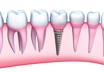 Cắm răng Implant ở đâu uy tín – Chất lượng tốt, bảo hành dài hạn
