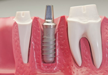 Hỏi – Đáp: Cấy ghép răng Implant giá bao nhiêu?