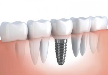 Giúp bạn hiểu rõ: Cắm răng implant là gì?