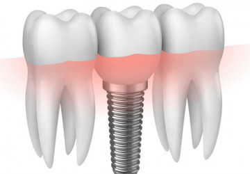 Làm Implant giá bao nhiêu hợp lý và chất lượng?