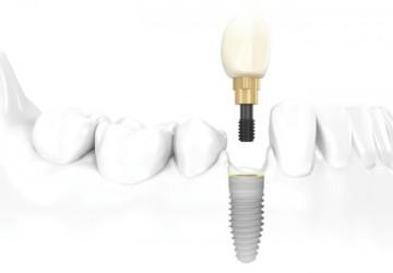 Làm răng Implant ở đâu an toàn tại Hà Nội?
