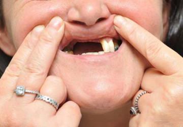 Trồng răng implant có đau không? Chuyên gia tư vấn