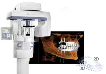 Trồng răng bằng phương pháp Implant OP300 hiện đại