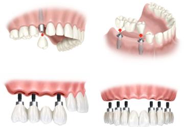 Trồng răng implant có nguy hiểm không? – Lý giải của chuyên gia