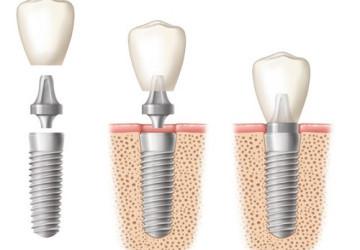 Địa chỉ trồng răng implant nào uy tín tại hà nội?