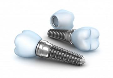 Cập nhật bảng giá ghép răng Implant mới nhất 2018