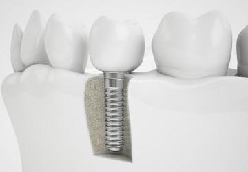 Cấy ghép răng sứ Implant và công nghệ hoàn hảo cho phục hình răng mất