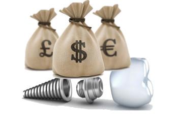 Giá cấy ghép răng Implant là bao nhiêu trong năm 2017?