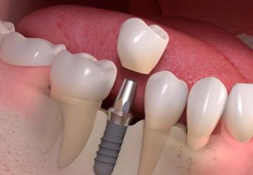 Cập nhật bảng giá răng Implant đầy đủ & mới nhất 2018