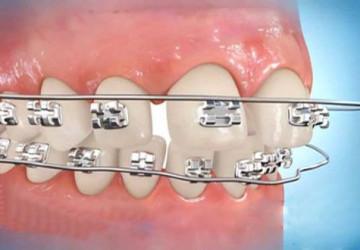 Niềng răng thưa mất bao lâu thời gian để có hàm răng hoàn mỹ nhất?