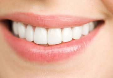 Thuốc tẩy trắng răng và những lưu ý bắt buộc phải biết